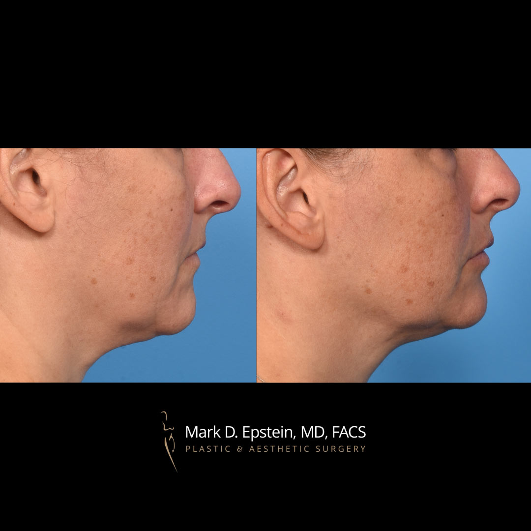 A Discussion with Dr. Epstein about the MyEllevate® Procedure, Zoom Lift